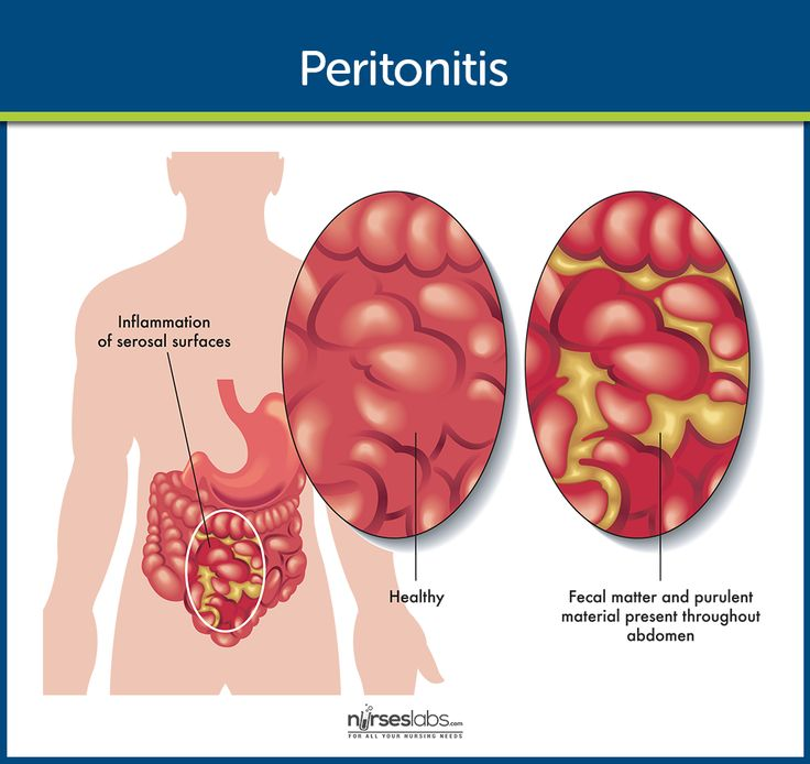 Peritonitis Pathophysiology  Peritonitis is the inflammation of the peritoneum, the serous membrane lining the abdominal cavity and covering the viscera.  Read more: http://nurseslabs.com/peritonitis/