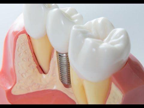 Kallangur Dentist Trivia: Top 5 Myths about Dental Implants  http://preventdentalsuite.com.au/