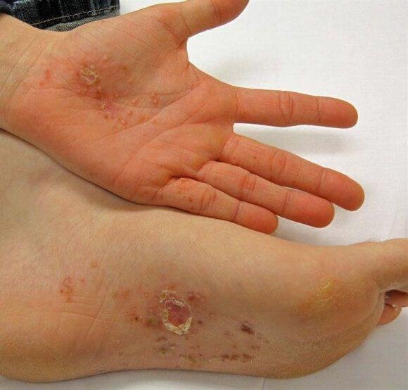 http://reverseyoureczema.com/dyshidrotic-eczema-my-very-personal-skin-disorder