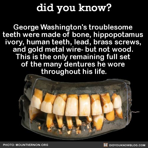 did you know? - George Washington's troublesome teeth were made of...