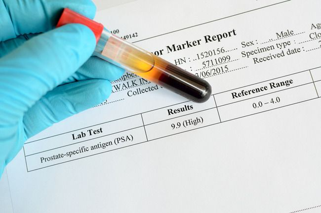 A recent study suggests that abandoning prostate cancer screening via the PSA test may raise your risks by delaying diagnosis and treatment of a curable cancer. http://universityhealthnews.com/daily/prostate/are-you-keeping-tabs-on-your-psa-levels/