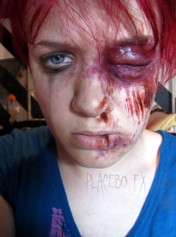 Swollen Eye by PlaceboFX.deviantart.com on @deviantART ...