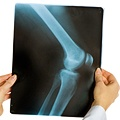 How Informed Are You?    -What Raises Your Osteoarthritis Risk?  -Differences Between OA and RA  -Crackle, Pop, Pain: 5 Signs of Arthritis  -3 Treatments for Osteoarthritis  -How Treating Arthritis Early Pays Off