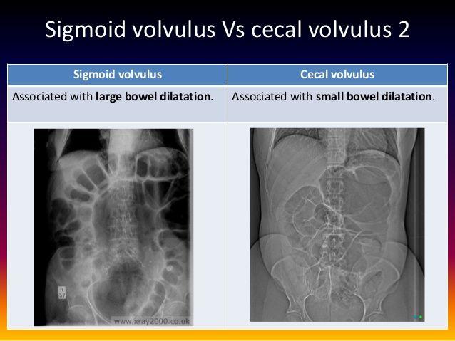 Image Result For Cecal Volvulus Vs Sigmoid Volvulus
