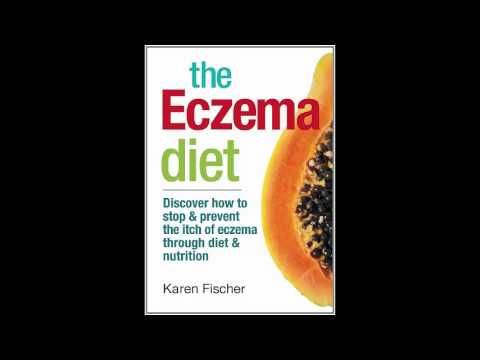 The Eczema Diet  Discover How to Stop and Prevent The Itch of Eczema Through Diet and Nutrition -  CLICK HERE for the Eczema Treatment! #eczema #eczematreatment #healthguides  The Eczema Diet  Discover How to Stop and Prevent The Itch of Eczema Through Diet and Nutrition PDF Link Download:  - #Eczema