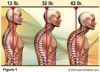 For every inch the head moves foward in posture it increases the weight of the head on the neck by 10 lbs