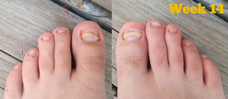 Tea Tree Oil Nail Fungus Before and After You can get more information about nail care at Purifythis.com