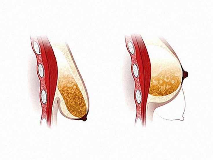 Упражнения и методы, которые без хирургического вмешательства подтянут отвисшую грудь
