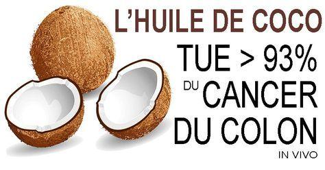 L'huile de noix de coco tue >93% des cellules de cancer du côlon in vivo