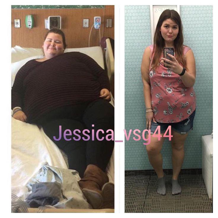 Weight loss gastonia nc photo 5