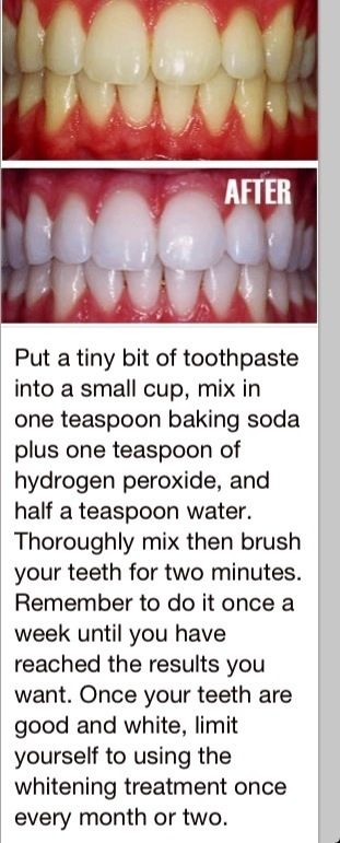 White teeth, this actually worked!! More