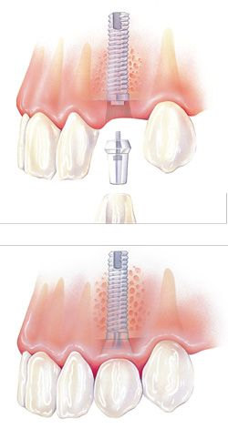 Dental Spa by K&F Recuerda...... que la limpieza dental es dos veces al año. Agenda tu cita hoy (664)685.00.58