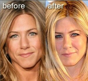 Jennifer Aniston nose job. Rinoplastia.