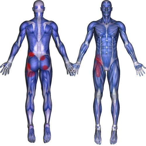 87 best Sciatica & Groin Relief and Pain Patterns images ...