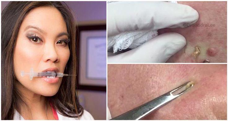 Dermatologista faz sucesso espremendo cravos e espinhas