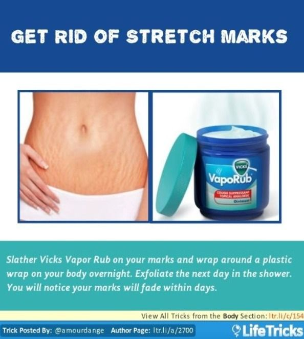 How To Get Rid Of Stretch Marks!!