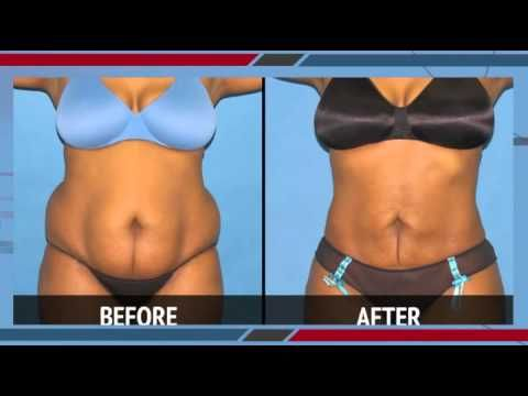 Smart Lipo Laser Liposuction Before And After Photos Video
