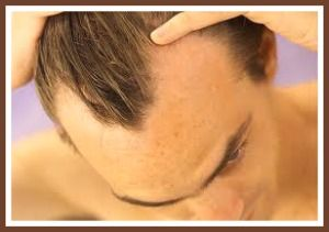 Is Hair Transplant Surgery What You Are Looking For To Enhance Your Self-Esteem?