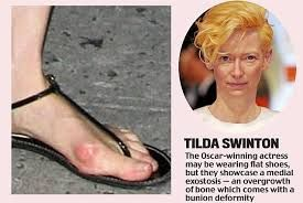 Image result for bunion pictures celebrity