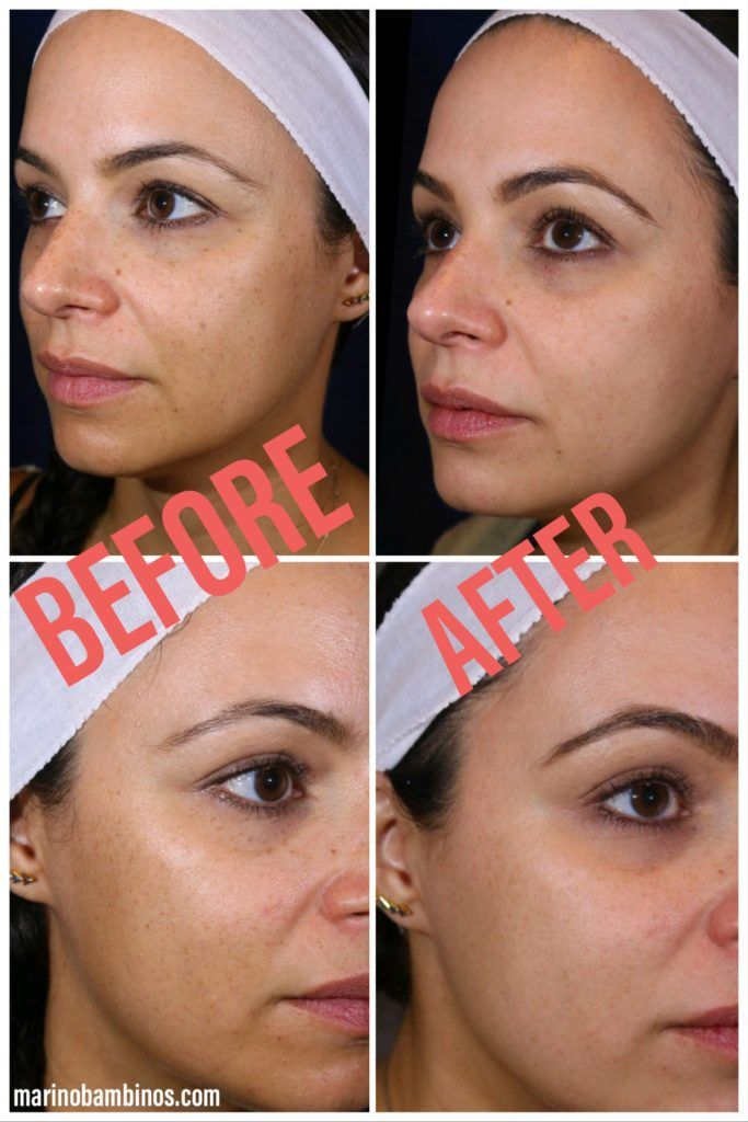Before And After Photos And A Review Of Laser Treatments For Stubborn Facial Sun Spot Removal Complexion Brightening Laser Treatment Laser Skin Care Facial