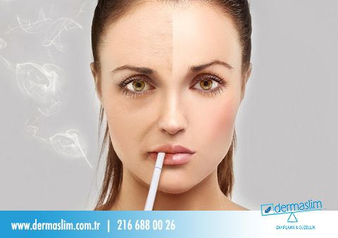 Gençlik Hırsızı Sigara ! Sigaranın içindeki katranın damarları daraltması sebebiyle, kanda taşınan oksijen azalıyor ve cilt kuruyarak daha çabuk kırışabiliyor.  Dermaslim Mora Tekniği ile 1 saatte sigaradan kurtulun! #dermaslim #moraterapi #sağlıklıyaşam #sigarayıbırakıyoruz