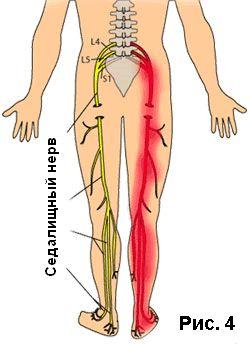 Воспаление седалищного нерва, корешковый синдром - как помочь себе