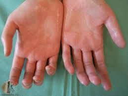What is Hyperhidrosis - Natural Herbs Clinic