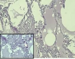Austin Publishing Group: Fatal Pulmonary Tumour Thrombotic Microangiopathy ...