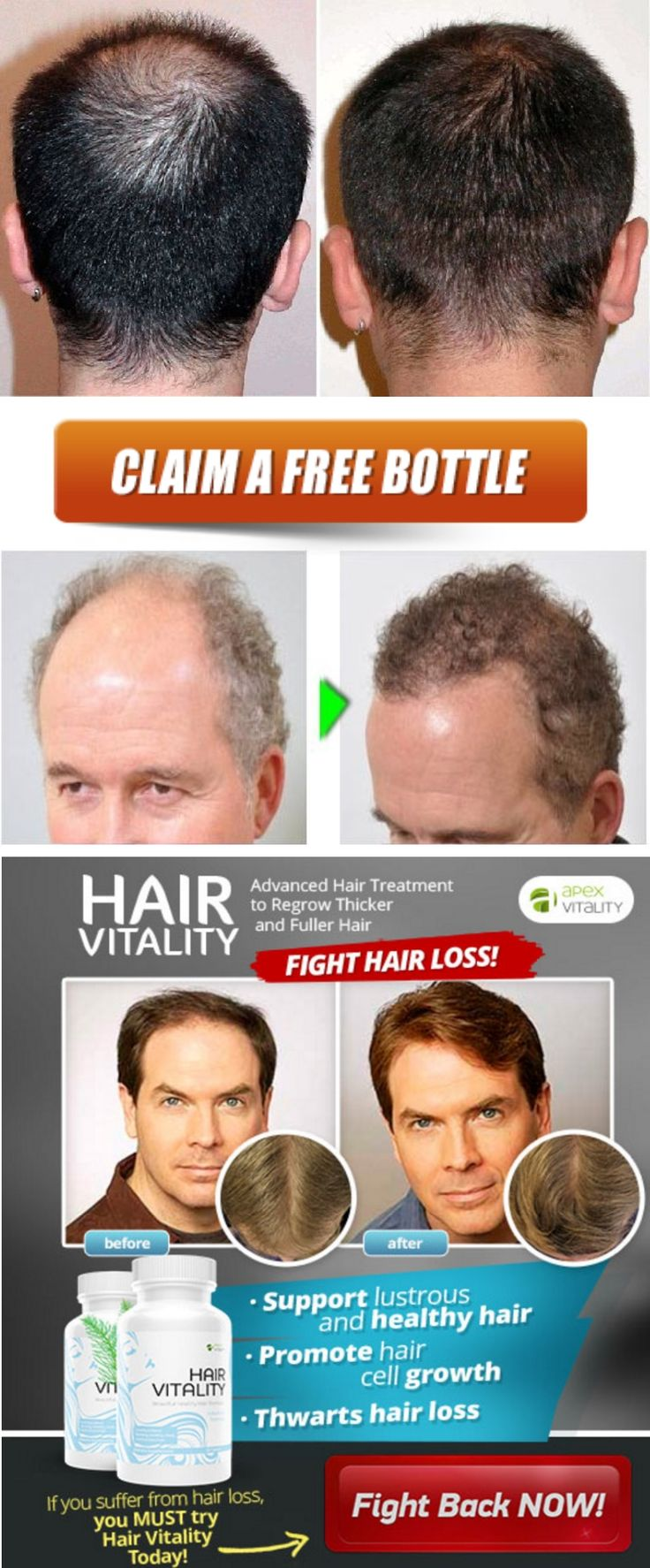 A Perfect Remedy for Hair fall. Looking for a good hair gain product? Click on picture to try a natural formula which fastens.