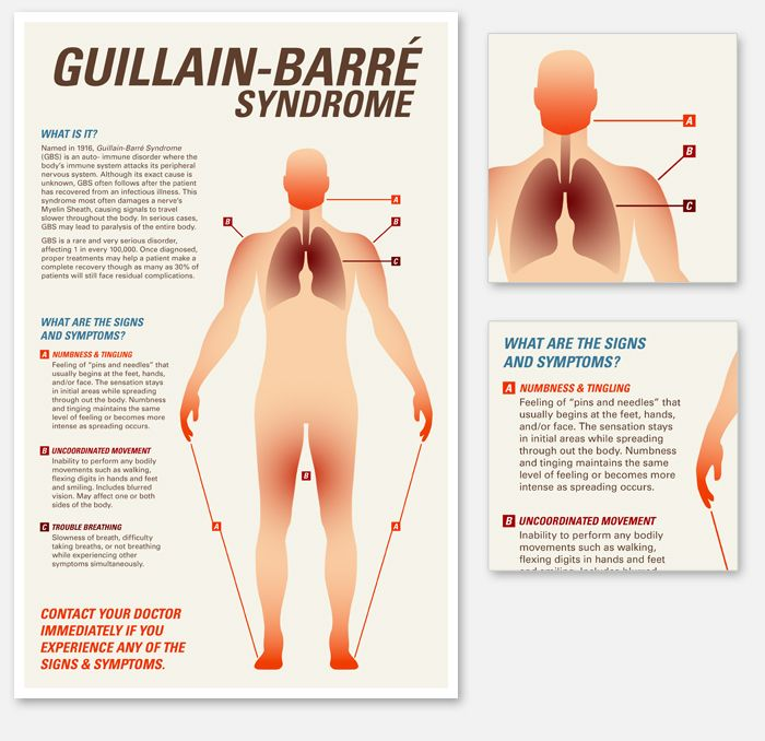 a research on guillain barre syndrome Guillain-barre syndrome-pipeline insights, 2017â , report provides comprehensive insights of the ongoing therapeutic research and development across guillain-barre syndrome the report provides a complete understanding of the pipeline activities covering all clinical, pre-clinical and discovery stage products.