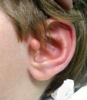 Doç. Dr. İrfan Serdar ARDA: Çocuklarda kulak kenarında görülen anormallikler