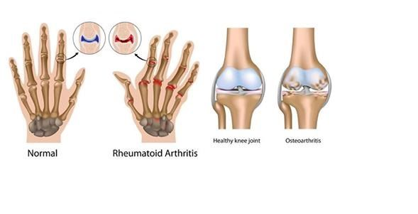 Spinal Arthritis Treatment *** Want additional info? Click on the image.