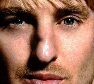 Owen Wilson Nose Story crooked nose
