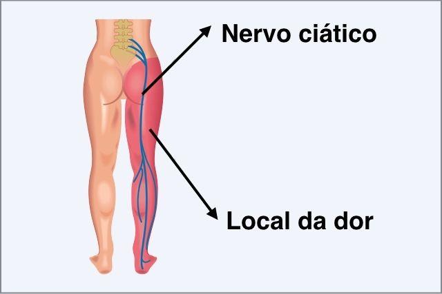 Águas de Pontal: Como curar o nervo ciático inflamado