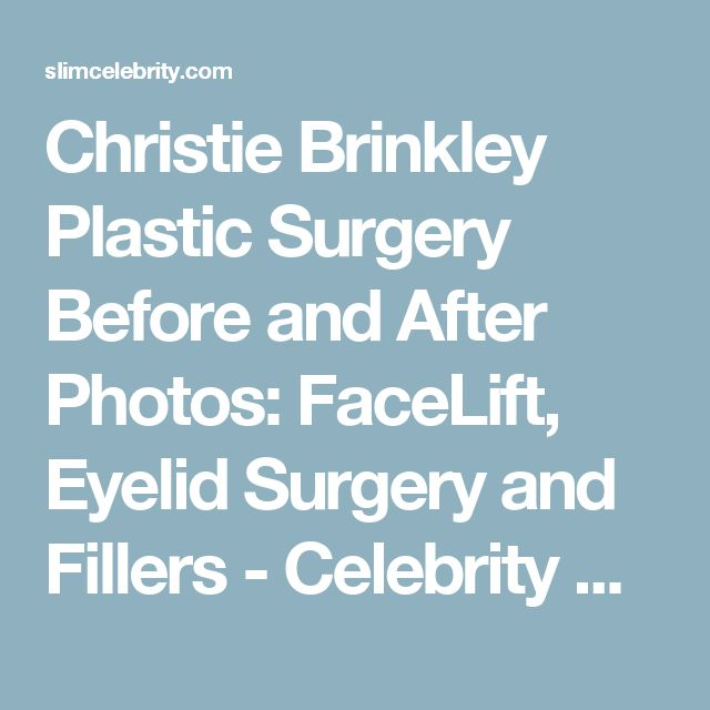 Christie Brinkley Plastic Surgery Before and After Photos: FaceLift, Eyelid Surgery and Fillers - Celebrity Weight Loss and Celebrity Plastic Surgery