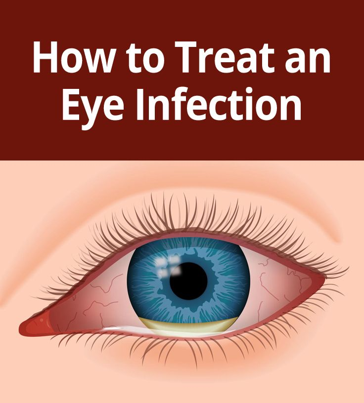 Eye Infections: how to avoid, what you should do if you get one