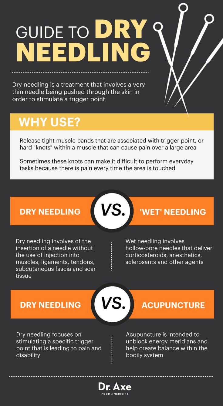 Dry Needling Relieves Muscle Pain & More - Dr. Axe