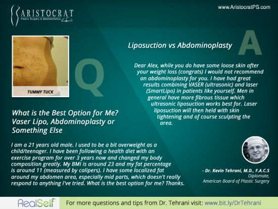 Q: What is the Best Option for Me? Vaser Lipo, Abdominoplasty or Something Else?    Find more Q at http://www.AristocratPS.com/category/blog