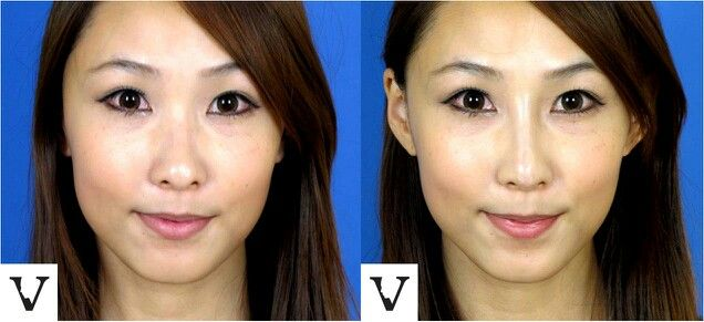 """Nasal bridge augmentation with Radiesse. All that patient could say is """"it's magic""""! #Boston #rhinoplasty #augmentation #surgery #alternative #chin #augmentation #fillers #radiesse #juvederm #restylane #botox #jaw #reduction #tmj #Asian #westernization #feminine #face #anime #projection #lips #eyes #brows #visagesculpture #mashabanar www.VisageSculpture.com"""