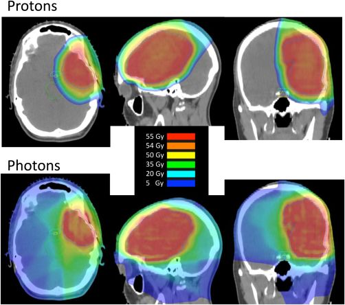 Shih 2015 Proton radiation