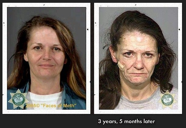 before and after meth pictures | aging from ...