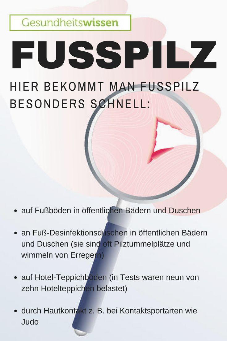 Fußpilz (Tinea pedis) bezeichnet eine Infektion der Füße (insbesondere der Zehenzwischenräume und Fußsohlen) durch Fadenpilze oder Dermatophyten. Sie befallen Hornsubstanz wie Haut, Haare und Nägel. Fußpilz verursacht Symptome wie zum Beispiel starken Juckreiz, Rötung der Haut, Schuppenbildung und die Bildung nässender Bläschen. Fußpilz zählt mit einem Auftreten von 30 bis 70 Prozent in der deutschen Bevölkerung zu den häufigsten Infektionskrankheiten.
