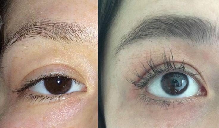 Bimatoprost Lumigen latisse eyelash, Eyebrow Hair growth serum, Extensions | eBay