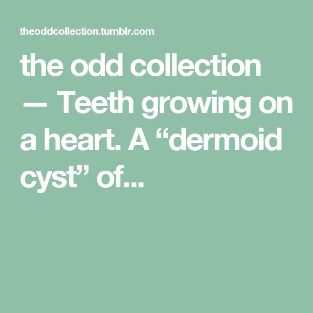 """the odd collection — Teeth growing on a heart.      A """"dermoid cyst"""" of..."""