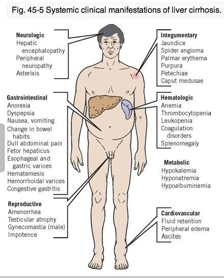 Systemic Clinical Manifestations of Chronic Liver Failure