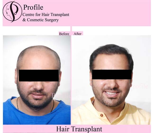 http://hairtransplantinindia.ca/ Get the effective and cost-effective hair transplant at Profile Hair Transplant Centre. As shown, our results are effective and reliable.