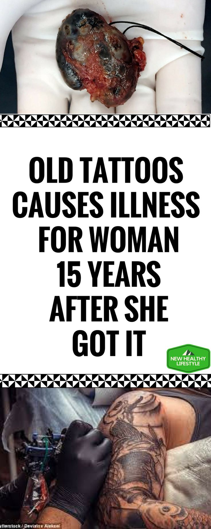 OLD TATTOOS CAUSES ILLNESS FOR WOMAN 15 YEARS AFTER SHE GOT IT    http://t.umblr.com/redirect?z=http://newhealthylifestyle.info/2017/10/20/old-tattoos-causes-illness-for-woman-15-years-after-she-got-it/&t=OWJlNTMzNDBhMTEyOTdkOWEyMGE3ZTc3NWIyZWZkMTdiMTUwNTBhYixiQXpRdlpEWQ==&b=t:Poru5MZzsR4-2bSsunHSig&p=https://majatodorovska12345.tumblr.com/post/166588218707/old-tattoos-causes-illness-for-woman-15-years&m=1