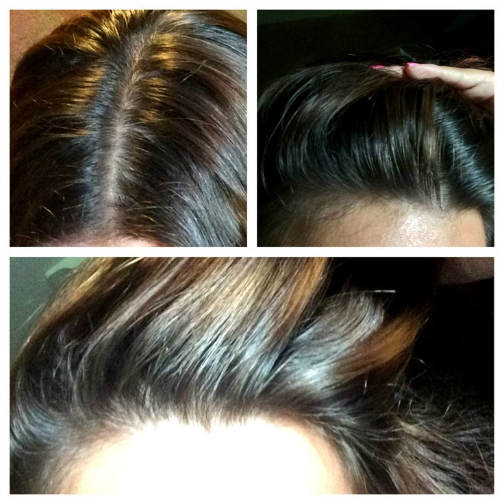 Hair growth treatment? Does it work? #hairgrowth #growhairfast #getthickerhair