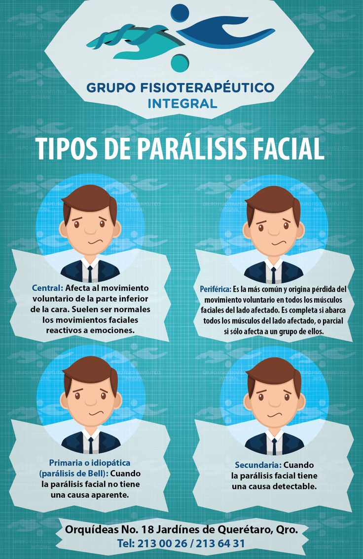 """#Infografía que describe los diferentes tipos de parálisis facial. ¡Atiéndete con terapias que complementen tu tratamiento con #GrupoFI! """"Salud integral sólo en nuestras manos"""". #Fisioterapia"""
