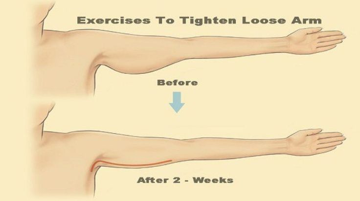 5 Simple Exercises To Tighten Loose Arm - http://eradaily.com/5-simple-exercises-tighten-loose-arm/